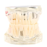 透明な歯科インプラント疾患歯のモデル歯の歯のツール歯科大人Typodontリムーバブル歯のモデル