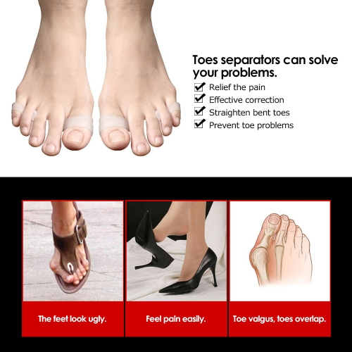 1 Pair Toes Separators Hallux Valgus Overlapping Correction Separation Spacers Yoga Hammer Toe Stretchers SiliconeHealth &amp; Beauty<br>1 Pair Toes Separators Hallux Valgus Overlapping Correction Separation Spacers Yoga Hammer Toe Stretchers Silicone<br>