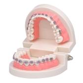 Modelo de Mallocclusão Ortodôntica Odontológica com Suportes Modelo de Dente de Tubo Bucal Archwire para Comunicação de Pacientes Ensino de Adulto