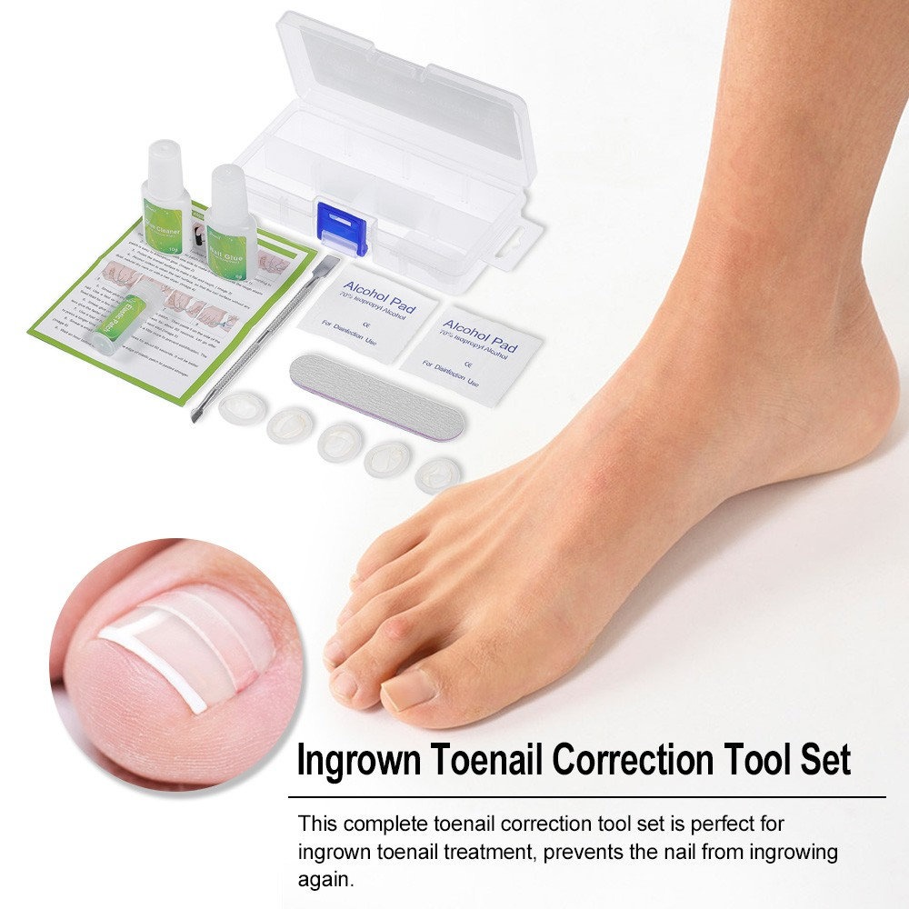 Toenail Correction Tool Set Ingrown Toe Nail Treatment Toenail ...