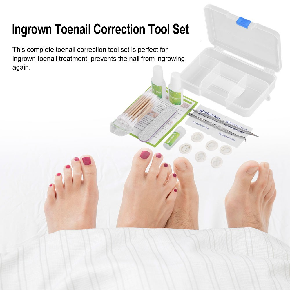 Toenail Correction Tool Set Ingrown Toenail Treatment Toenail ...