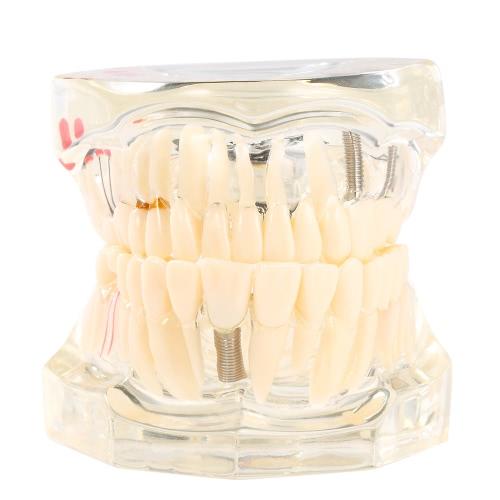 Implantação Dental Transparente Doença Modelo de dentes Modelo de dentes Ferramenta Dental Adulto Modelo de dentes removíveis de adulto Modelo