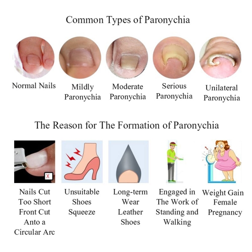 120Pcs Ingrown Toenail Straightening Clip Toenail Paronychia Correction Patch Pedicure Treatment Tool Foot Care Tool