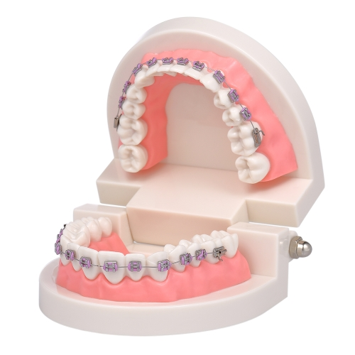 Dental Orthodontic Mallocclusion Model with Brackets Archwire Buccal Tube Teeth Model for Patient Communication Adult Teaching